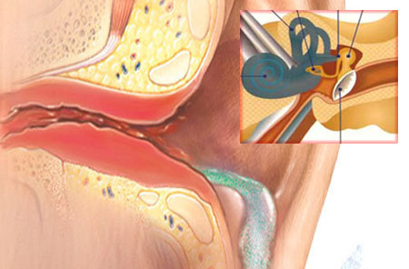 Лечение евстахиита