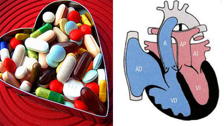 Лечение гипертрофии левого желудочка сердца