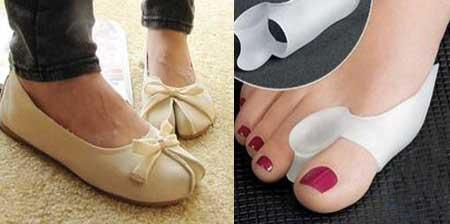 Косточки на ногах лечение в домашних условиях и народными средствами