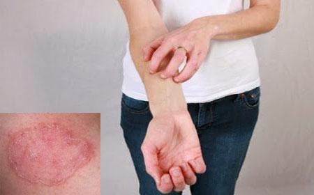 Лечение микоза кожи