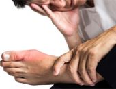 Лечение подагры большого пальца ноги