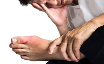 Подагра на большом пальце ноги - симптомы, лечение, фото