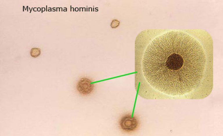 бактерия микоплазма хоминис