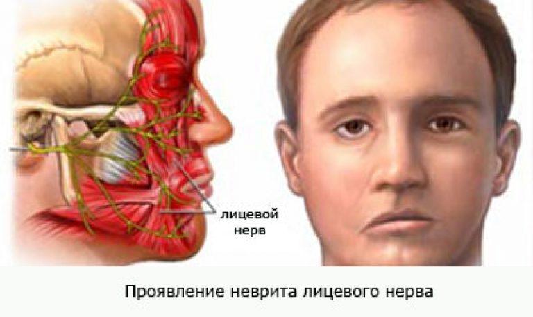 Oculomotor nerve palsy aneurysm
