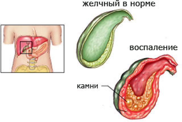 воспаления желчного пузыря суставы