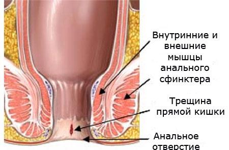 Причины возникновения трещин