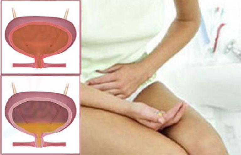 Цистит у женщин лучше лекарства для быстрого лечения цистита