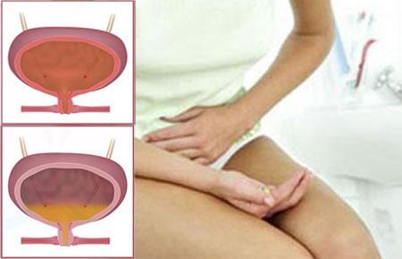 Дискомфорт в уретре после цистита