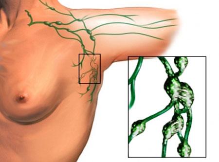 Признаки и симптомы воспаления лимфоузлов