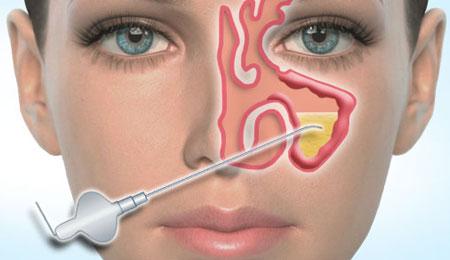 Радикальное лечение синусита