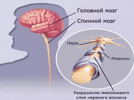 доксициклин и рассеянный склероз