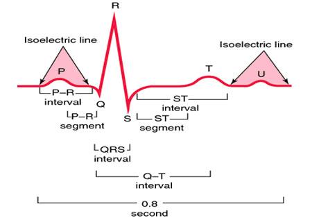 Расшифровка ЭКГ кардиаграммы