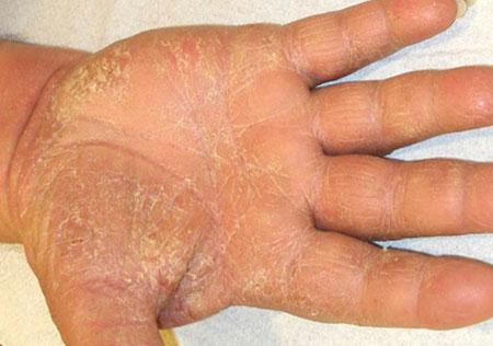 Симптомы экземы рук