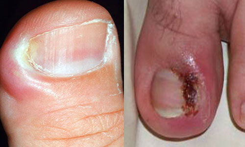 Международный стандарт лечения грибка ногтей