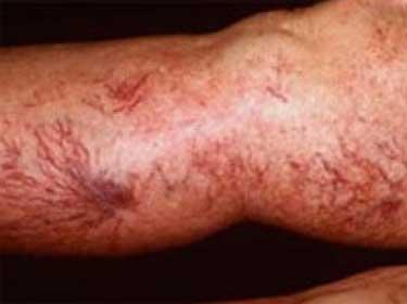 Симптомы тромбофлебита фото