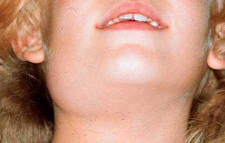 Симптомы воспаления слюнной железы фото1