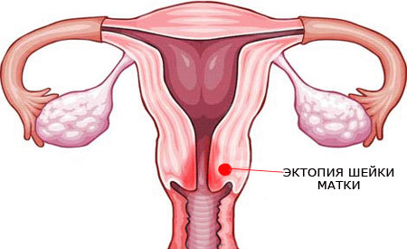 Эктопия шейки матки - что это такое и как проходит лечение?