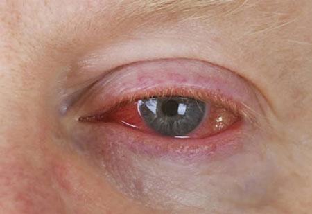 Виды воспалений глаз