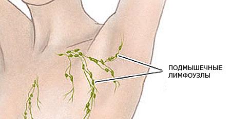 Воспаление лимфоузлов под мышкой