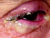 Воспаление века глаза, фото 1