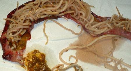 Часть удаленного кишечника с аскаридами