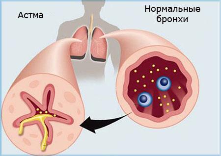 Нормальные бронхи и при приступе астмы
