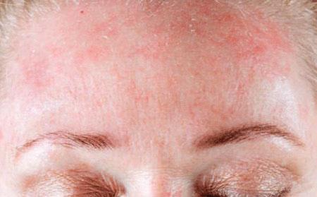 Кожные заболевания дерматит атопический дерматит