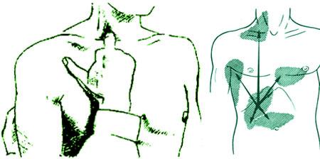френикус-симптом