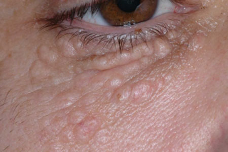 Жировики на нижнем веке глаза, фото