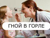 Гной в горле: причины, симптомы, фото - что делать и как лечить?
