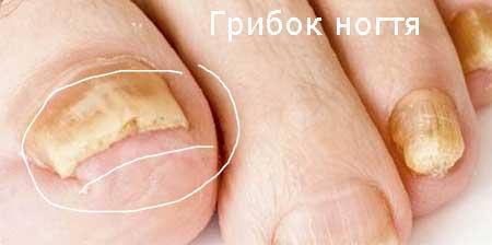 как лечить грибок стопы и ногтей народными средствами