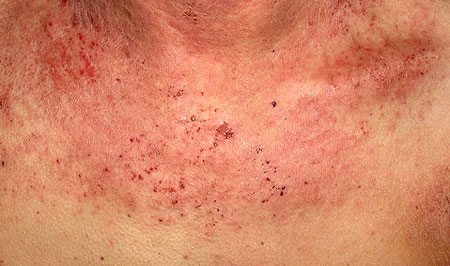 Солнечная крапивница, фото симптомов