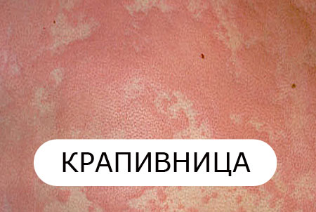 Крапивница у взрослых: симптомы и лечение, фото