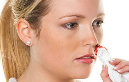 носовое кровотечение период беременности, что делать?