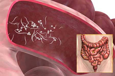 Острицы: симптомы и лечение у взрослых
