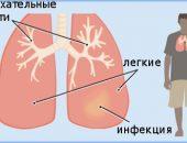 Что такое пневмония?