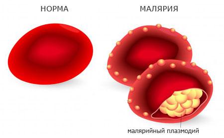 поражение малярией эритроцитов, клиника болезни