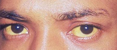 признаки синдрома Жильбера фото
