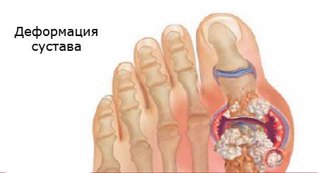 прогрессирование подагры деформация сустава