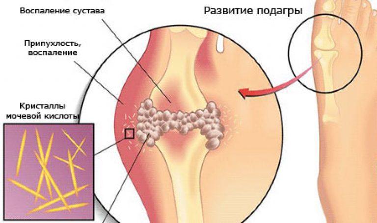 Лечение подагры при обострении медикаментами