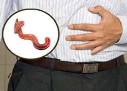 Симптомы поражения червями