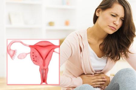 симптомы аденомиоза матки фото