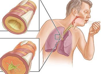 Симптомы бронхиальной астмы