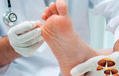 Грибок стопы: лечение, симптомы, фото