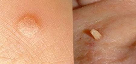 симптомы остроконечной кондиломы у женщин