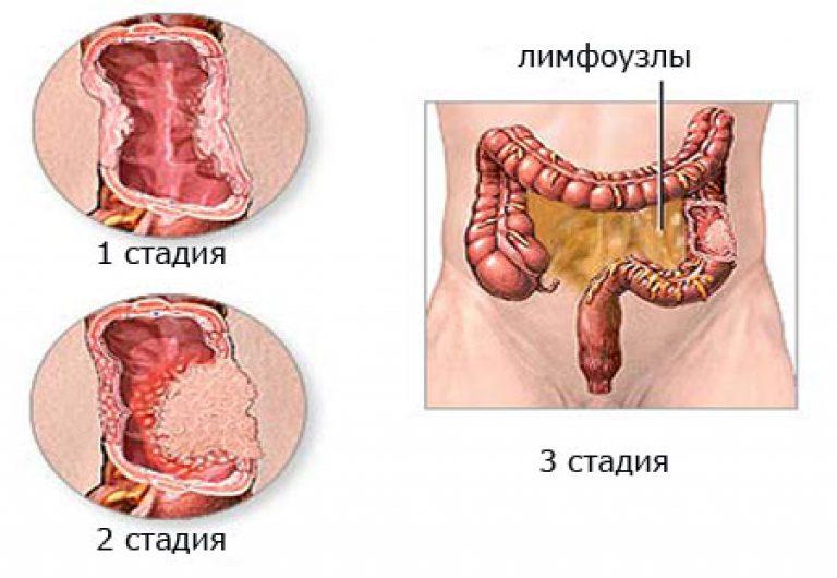 На 4-той стадии рак метастазирует