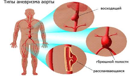 Типы аневризма аорты