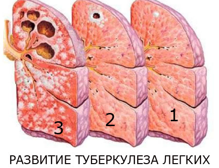 Развитие туберкулеза, фото