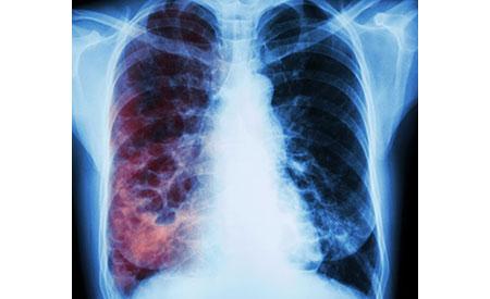 рентгенография при туберкулезе, способы диагностики