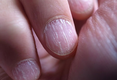 запущенный грибок рук
